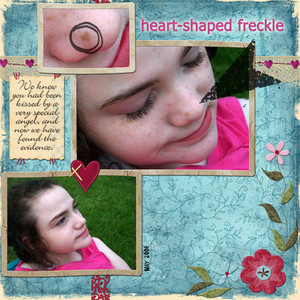 Heart Shaped Freckle