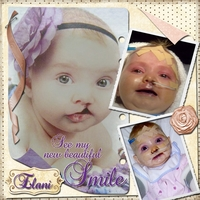 Thursday-Elani's New Smile